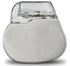 Permanent Pacemaker Implant